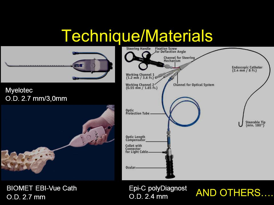 Technique/Materials AND OTHERS…. Myelotec O.D. 2.7 mm/3,0mm