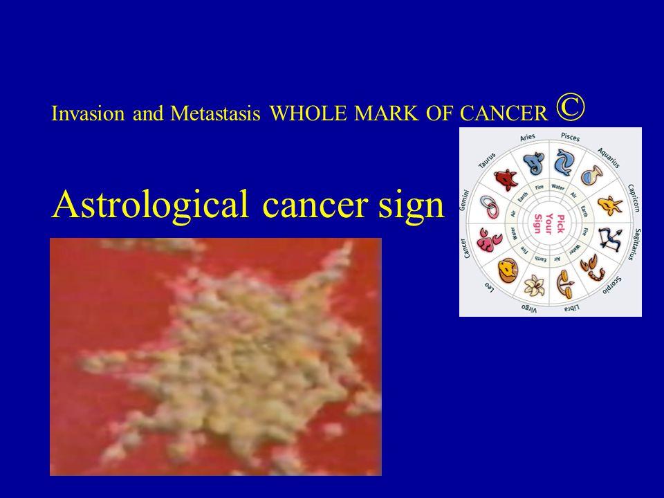 Astrological cancer sign