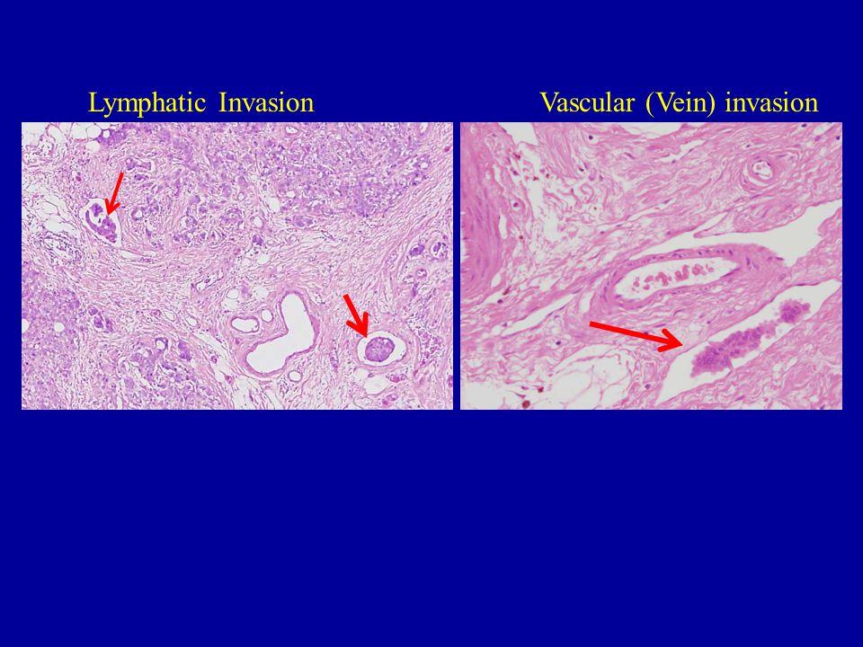 Lymphatic Invasion Vascular (Vein) invasion