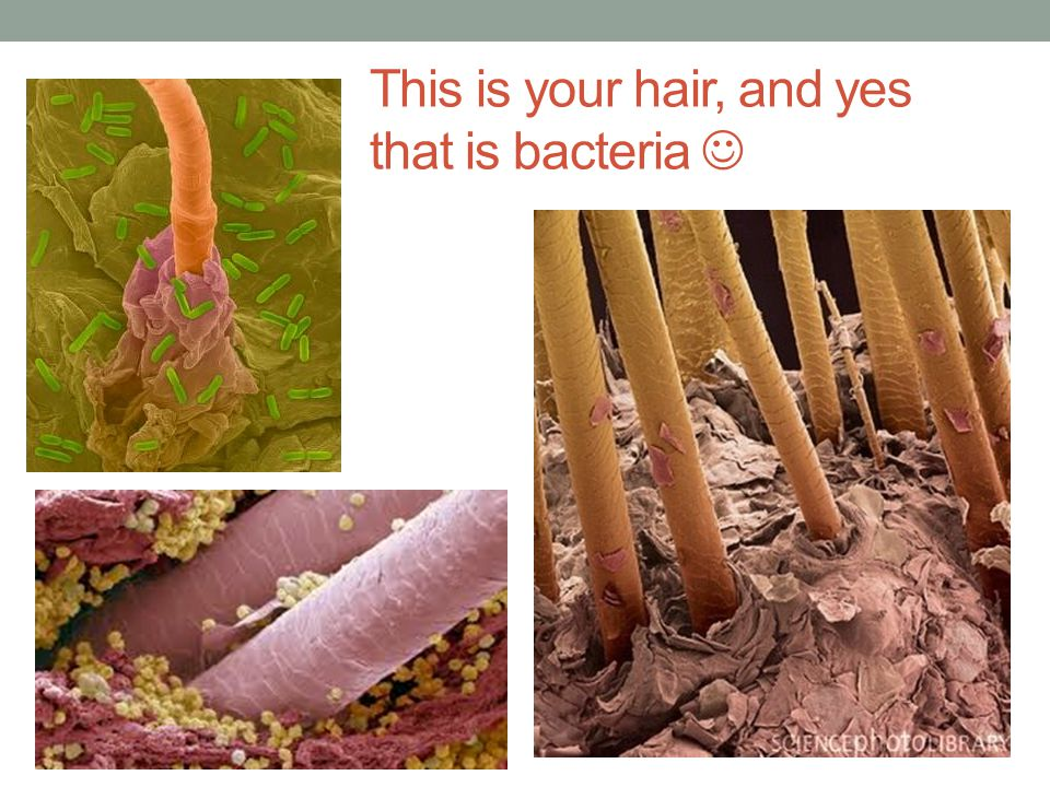 This is your hair, and yes that is bacteria 