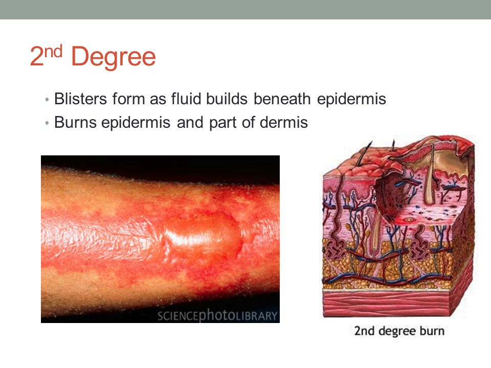 2nd Degree Blisters form as fluid builds beneath epidermis