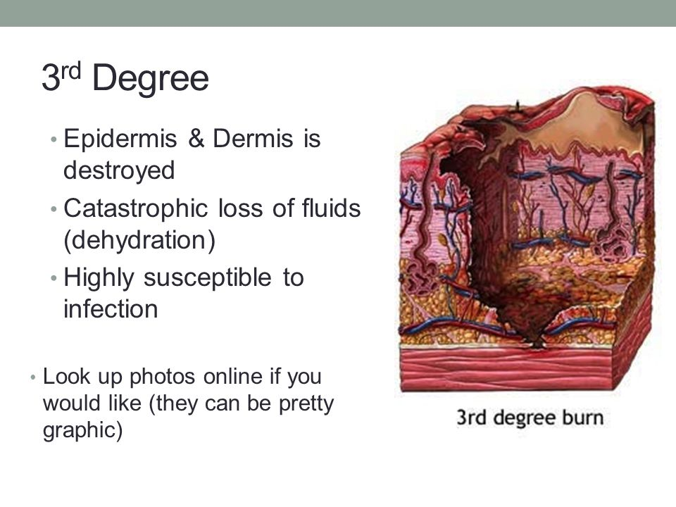 3rd Degree Epidermis & Dermis is destroyed