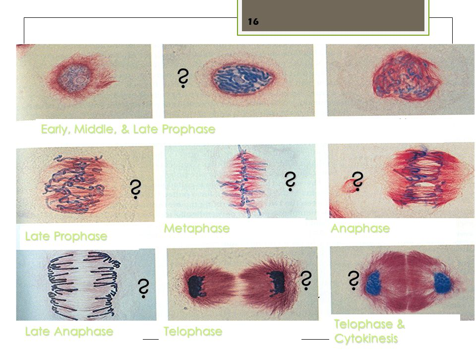 Identify the Stages Early, Middle, & Late Prophase