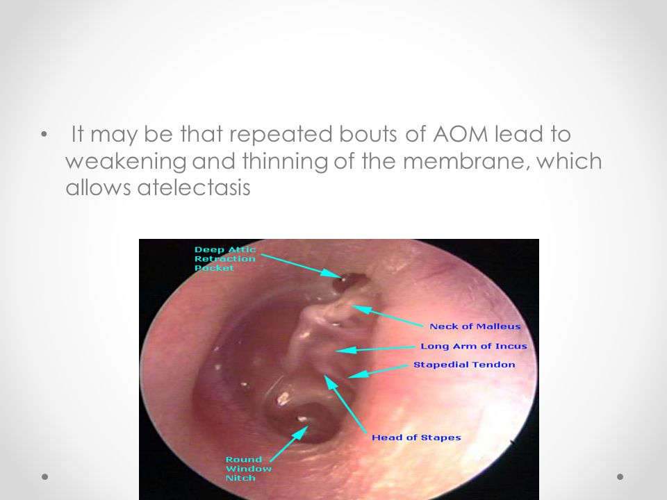 It may be that repeated bouts of AOM lead to weakening and thinning of the membrane, which allows atelectasis