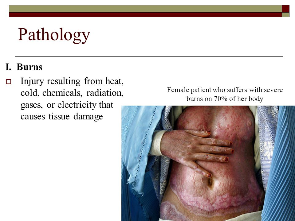 Female patient who suffers with severe burns on 70% of her body