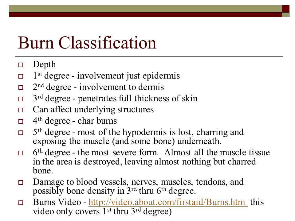 Burn Classification Depth 1st degree - involvement just epidermis