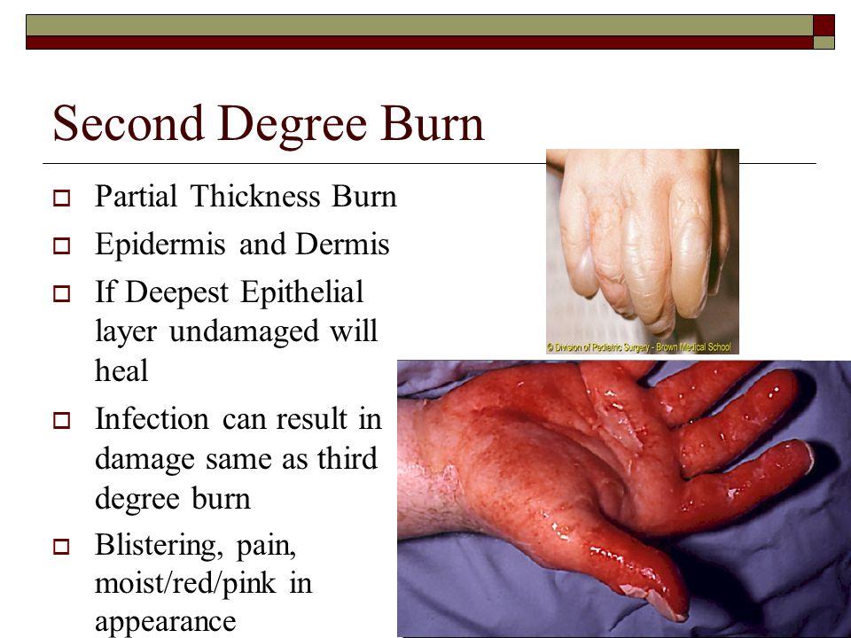 Second Degree Burn Partial Thickness Burn Epidermis and Dermis