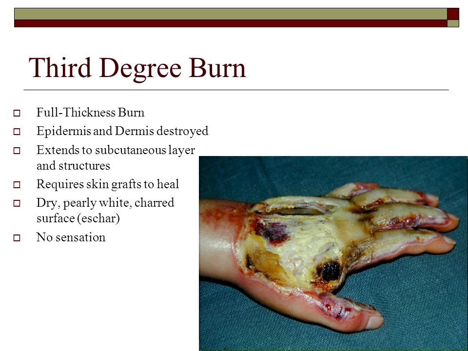 Third Degree Burn Full-Thickness Burn Epidermis and Dermis destroyed