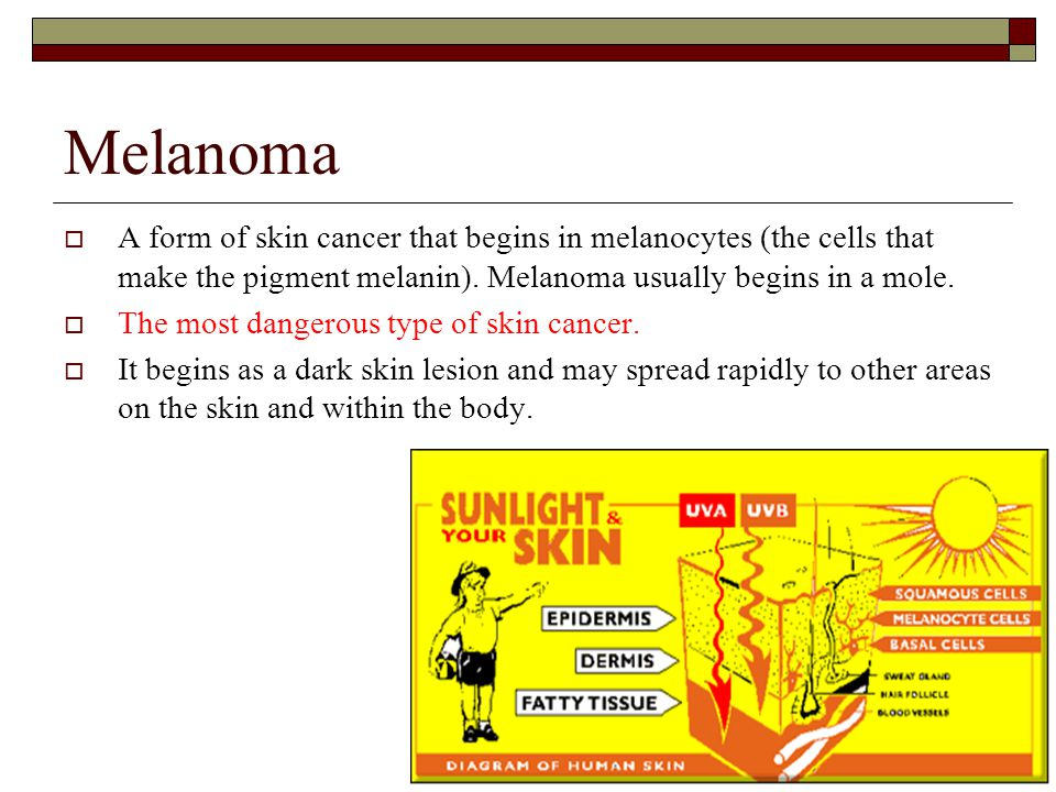 Melanoma A form of skin cancer that begins in melanocytes (the cells that make the pigment melanin). Melanoma usually begins in a mole.