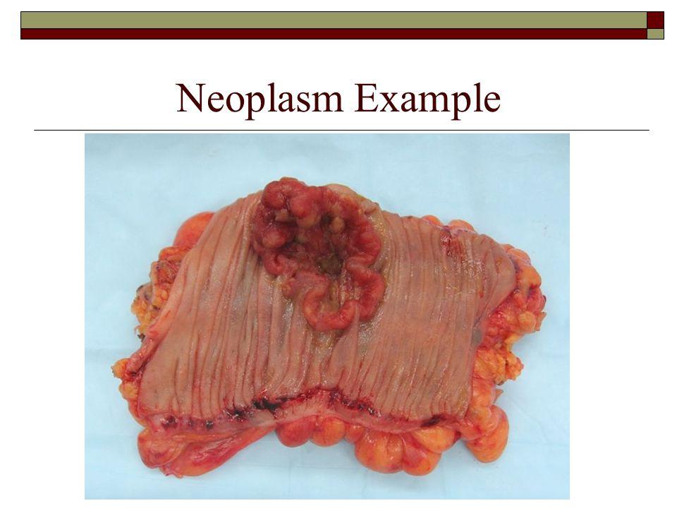 Neoplasm Example