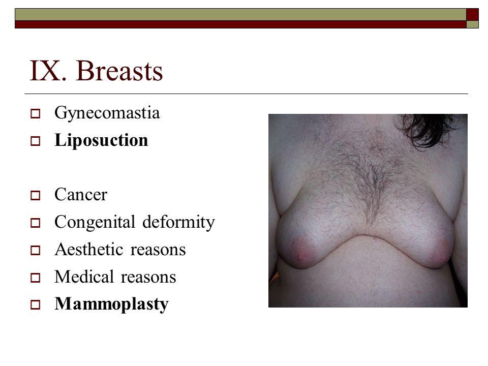 IX. Breasts Gynecomastia Liposuction Cancer Congenital deformity