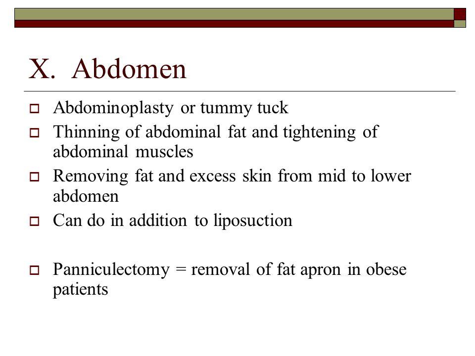 X. Abdomen Abdominoplasty or tummy tuck