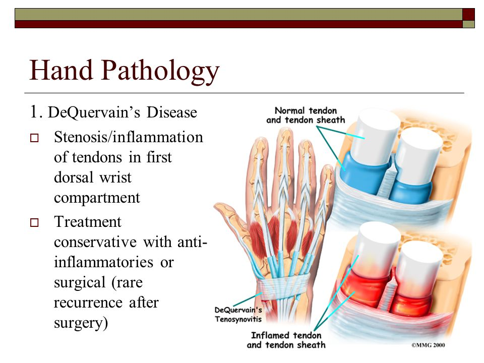 Hand Pathology 1. DeQuervain's Disease