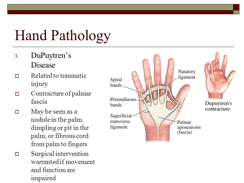 Hand Pathology DuPuytren's Disease Related to traumatic injury