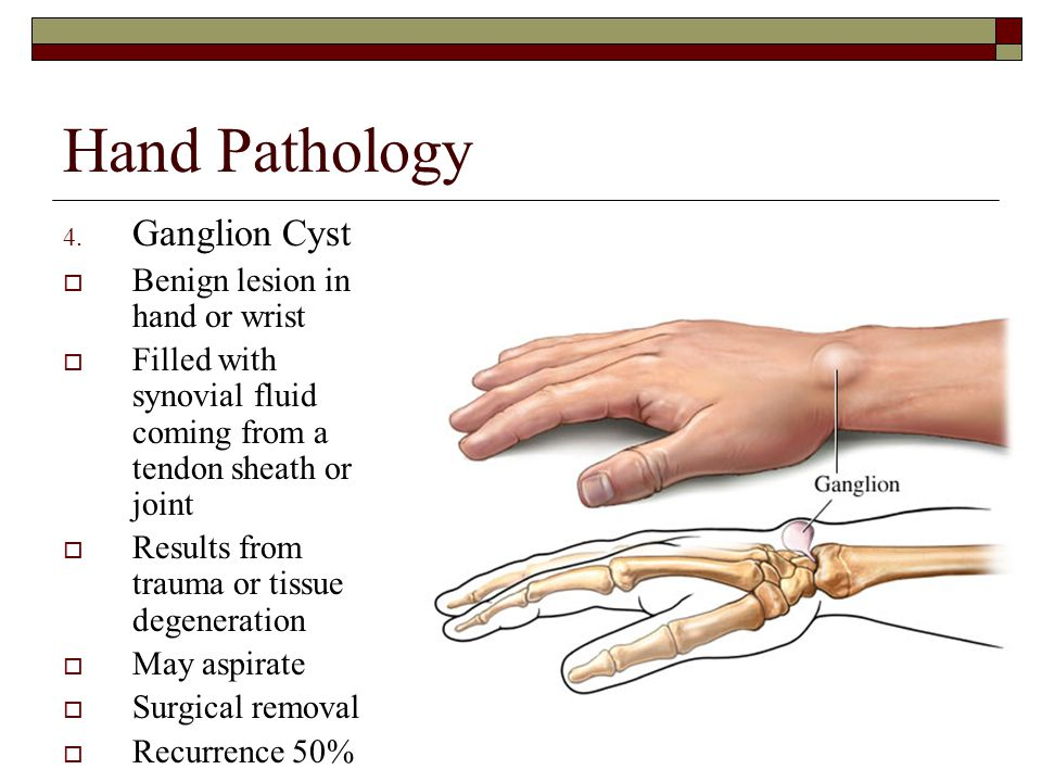 Hand Pathology Ganglion Cyst Benign lesion in hand or wrist