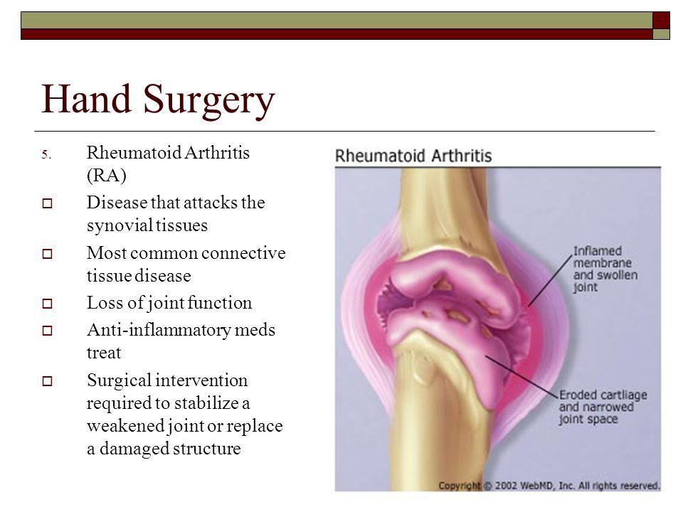 Hand Surgery Rheumatoid Arthritis (RA)
