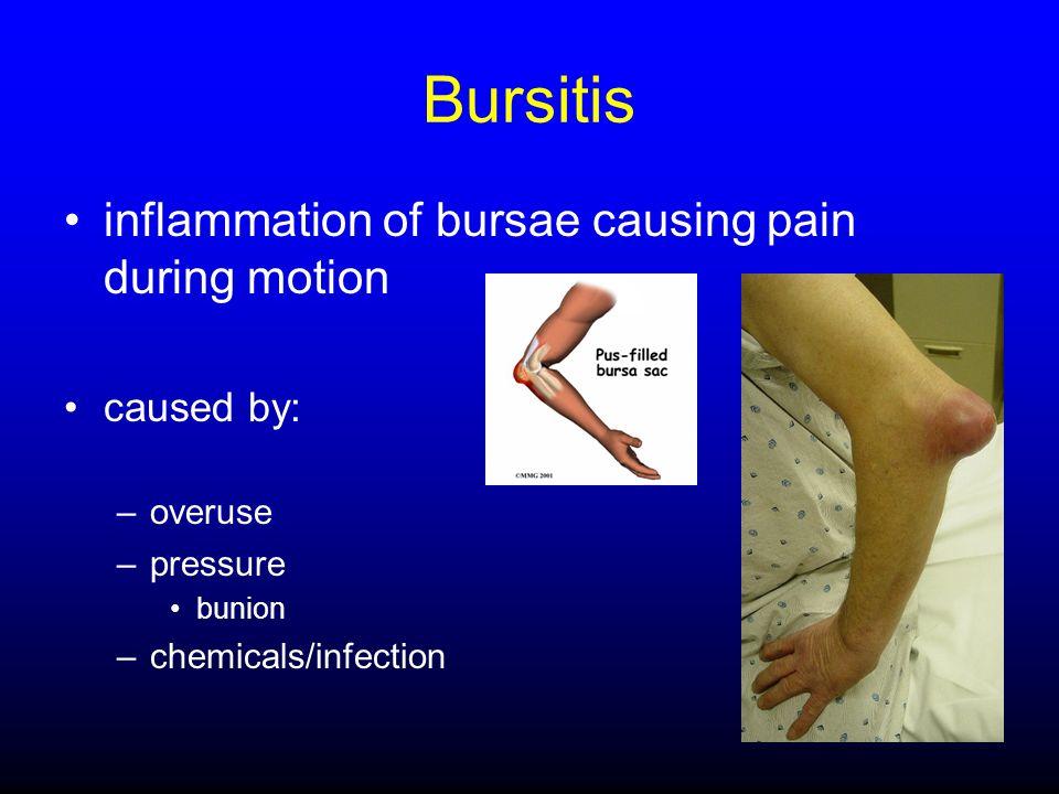 Bursitis inflammation of bursae causing pain during motion caused by: