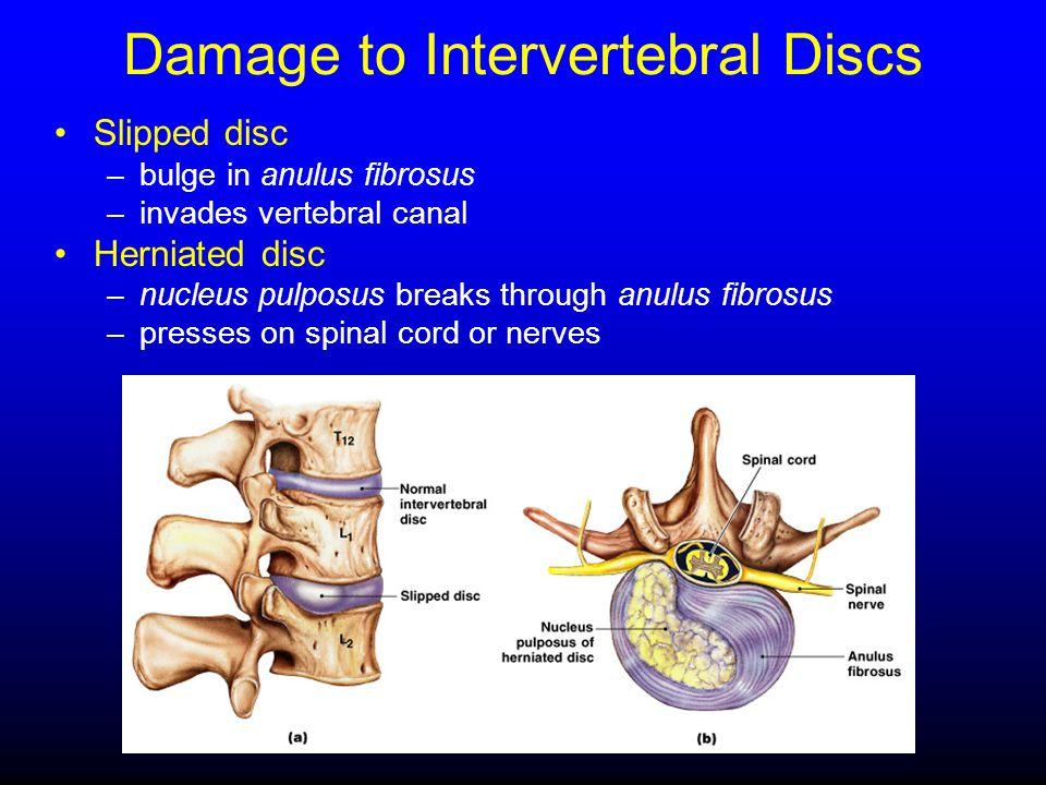 Damage to Intervertebral Discs