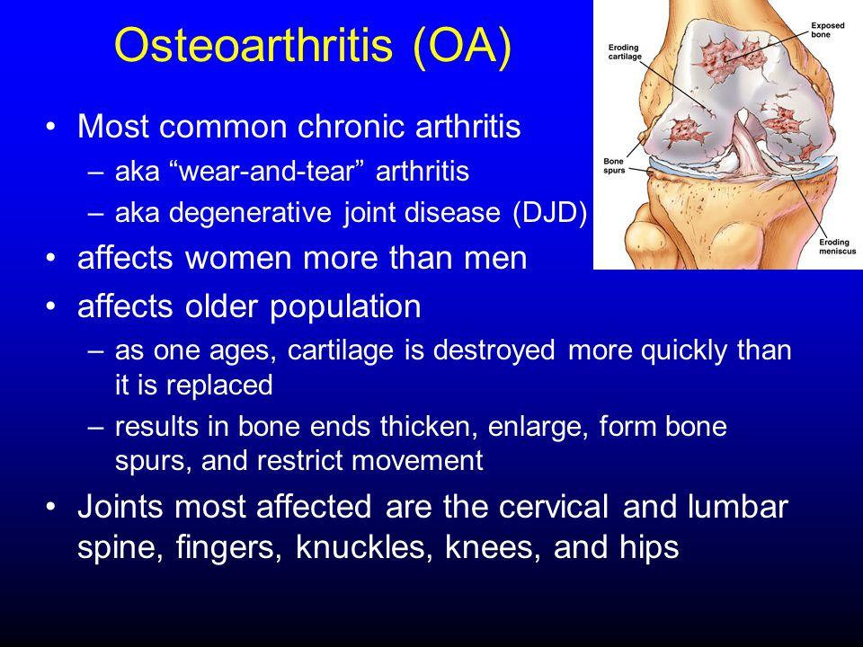 Osteoarthritis (OA) Most common chronic arthritis