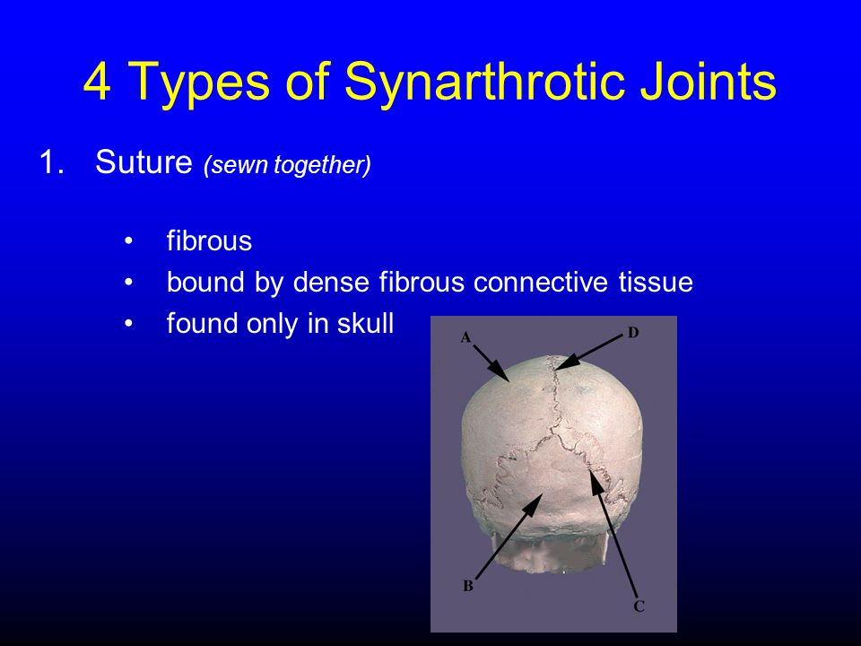 4 Types of Synarthrotic Joints