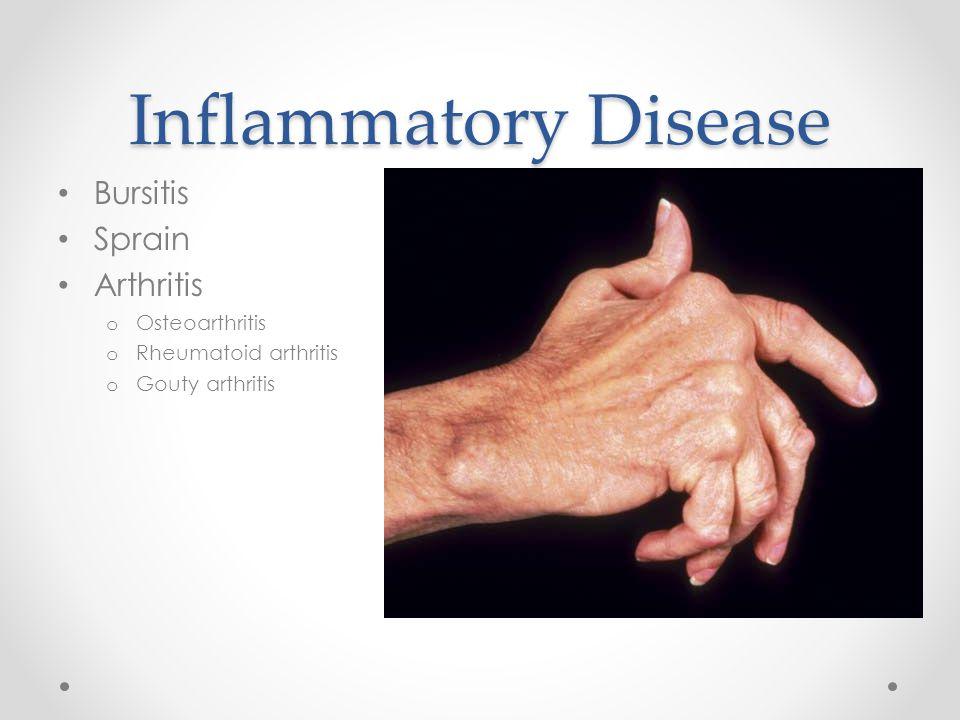 Inflammatory Disease Bursitis Sprain Arthritis Osteoarthritis