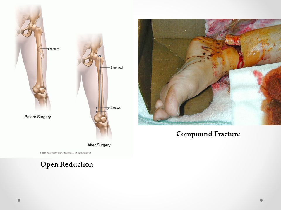 Compound Fracture Open Reduction