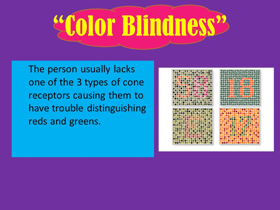 Color Blindness The person usually lacks one of the 3 types of cone receptors causing them to have trouble distinguishing reds and greens.