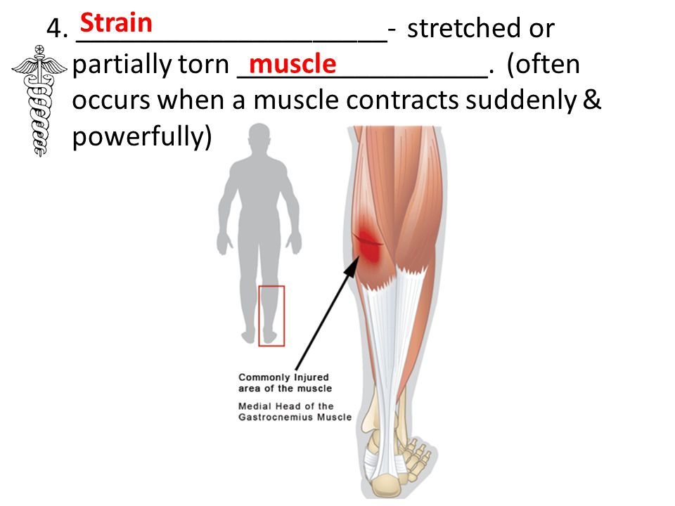 Strain 4. _____________________- stretched or partially torn _________________. (often occurs when a muscle contracts suddenly & powerfully)