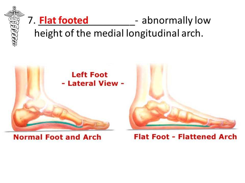 7. __________________- abnormally low height of the medial longitudinal arch.