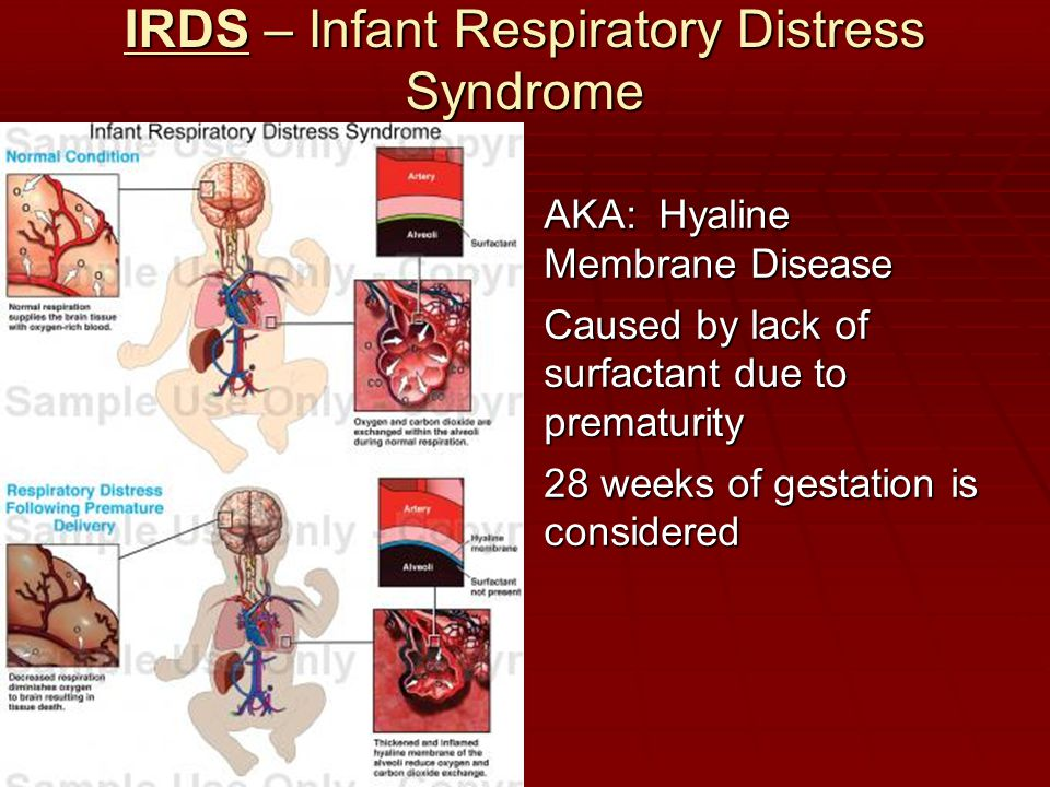 IRDS – Infant Respiratory Distress Syndrome