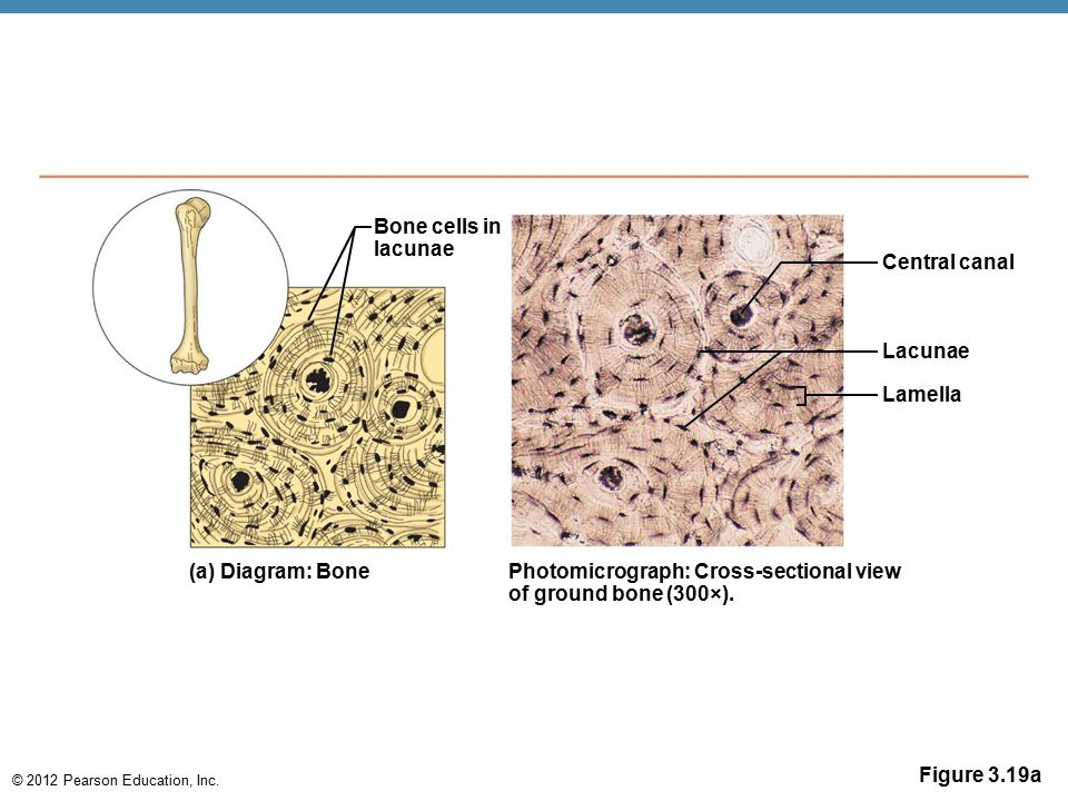 Bone cells in lacunae. Central canal. Lacunae. Lamella. (a) Diagram: Bone. Photomicrograph: Cross-sectional view.