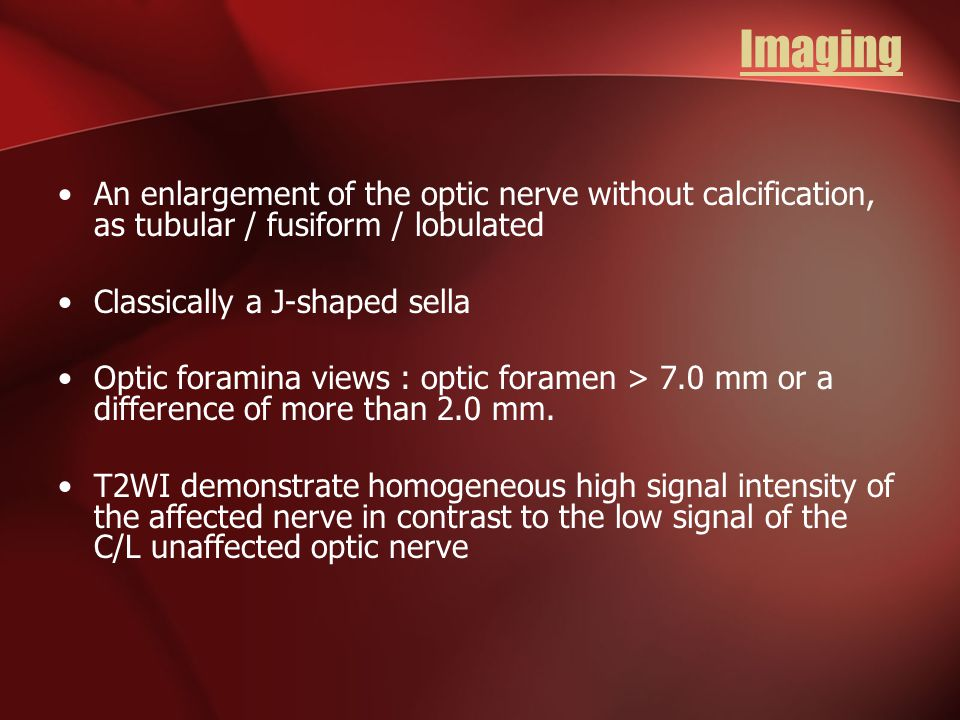 Imaging An enlargement of the optic nerve without calcification, as tubular / fusiform / lobulated.