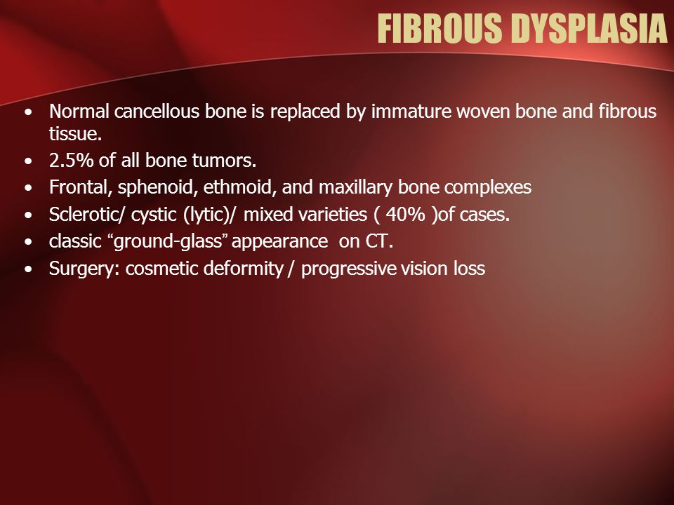 FIBROUS DYSPLASIA Normal cancellous bone is replaced by immature woven bone and fibrous tissue. 2.5% of all bone tumors.