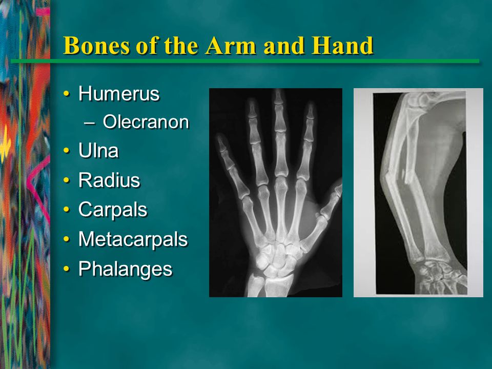 Bones of the Arm and Hand