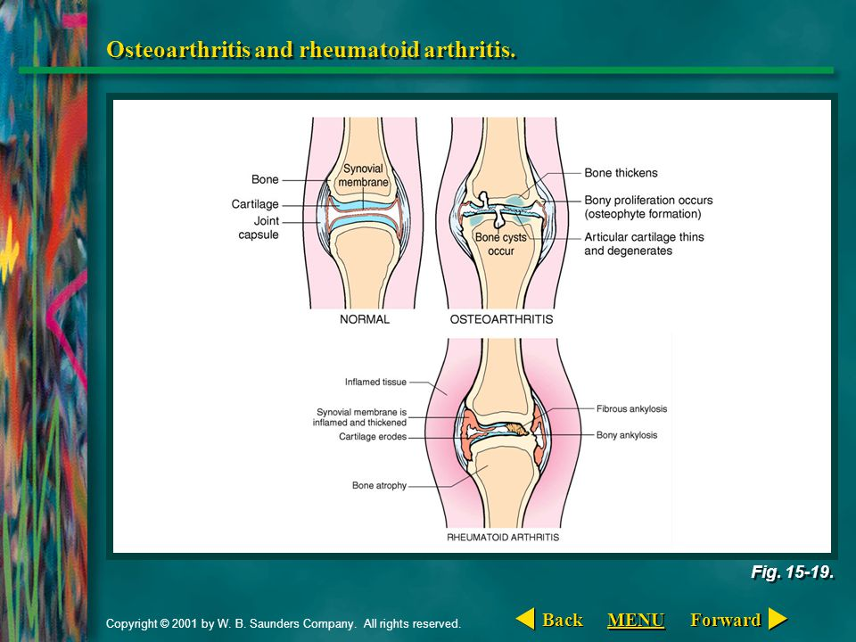 Osteoarthritis and rheumatoid arthritis.