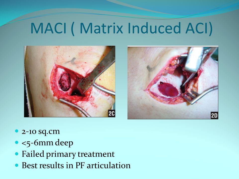MACI ( Matrix Induced ACI)
