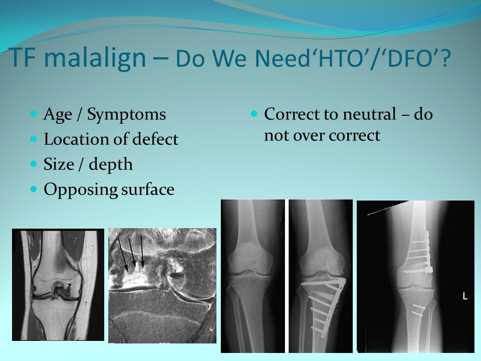 TF malalign – Do We Need'HTO'/'DFO'