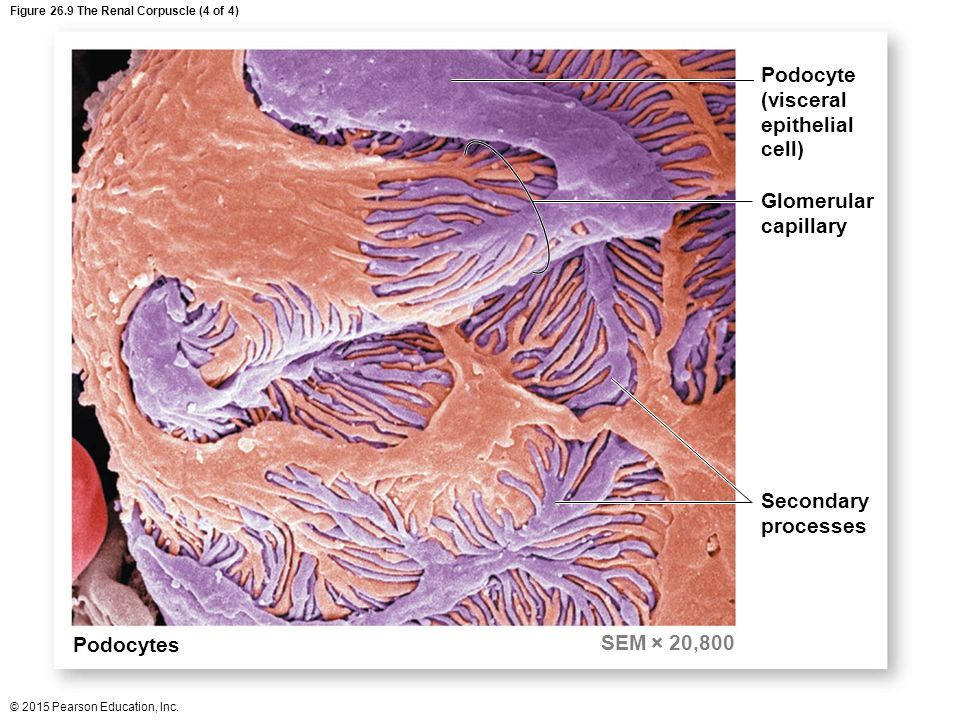 Figure 26.9 The Renal Corpuscle (4 of 4)
