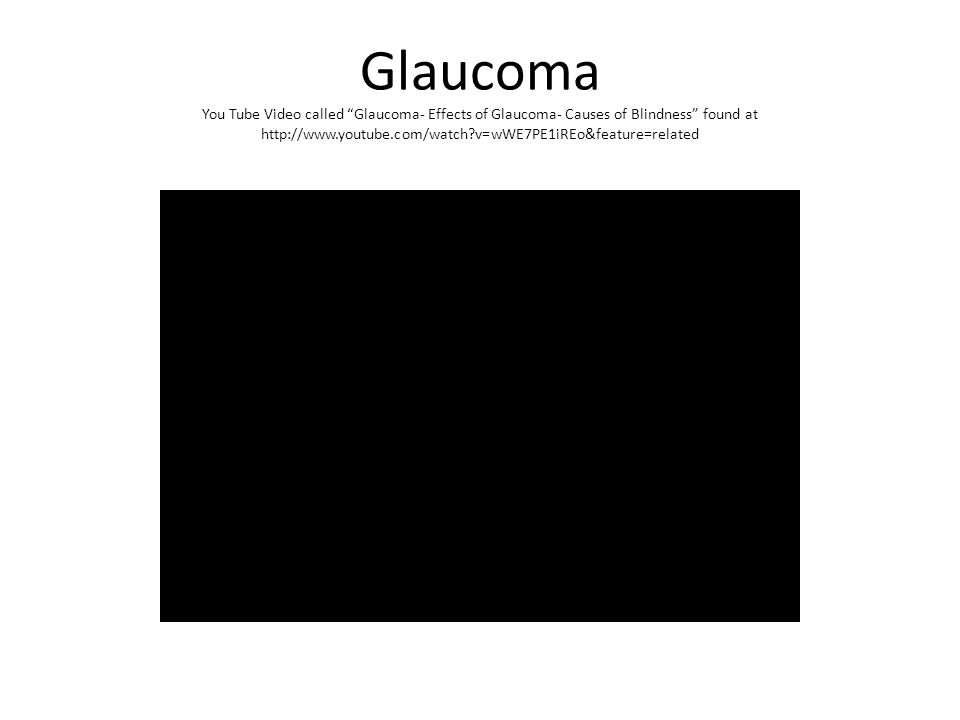 Glaucoma You Tube Video called Glaucoma- Effects of Glaucoma- Causes of Blindness found at http://www.youtube.com/watch v=wWE7PE1iREo&feature=related