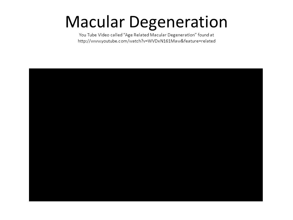 Macular Degeneration You Tube Video called Age Related Macular Degeneration found at http://www.youtube.com/watch v=WVDxN161Maw&feature=related