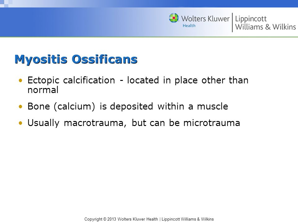 Myositis Ossificans Ectopic calcification - located in place other than normal. Bone (calcium) is deposited within a muscle.