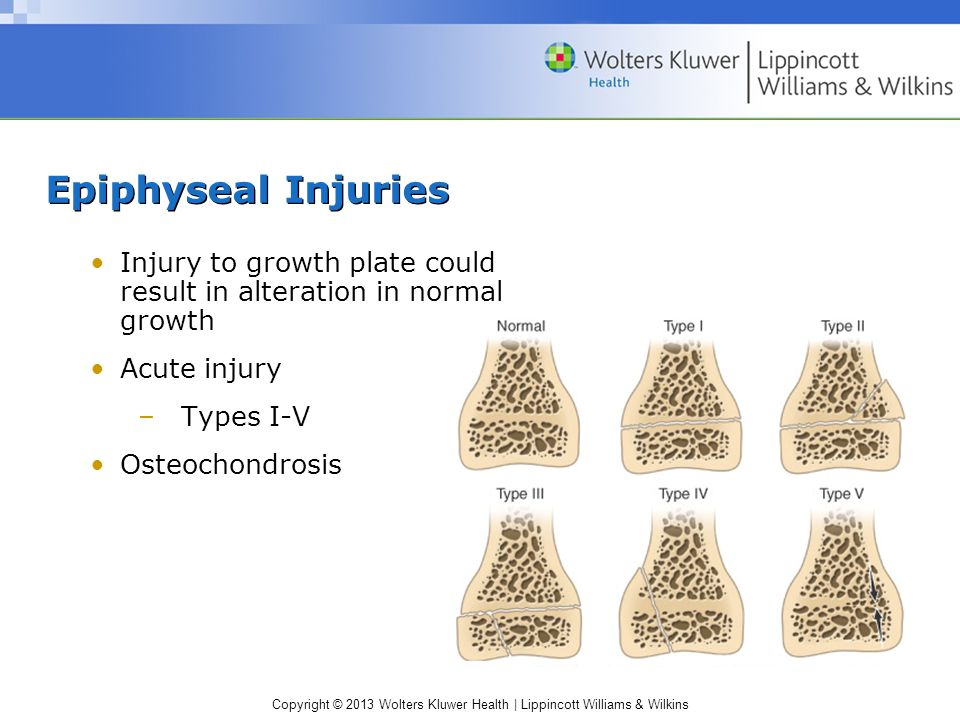Epiphyseal Injuries Injury to growth plate could result in alteration in normal growth. Acute injury.