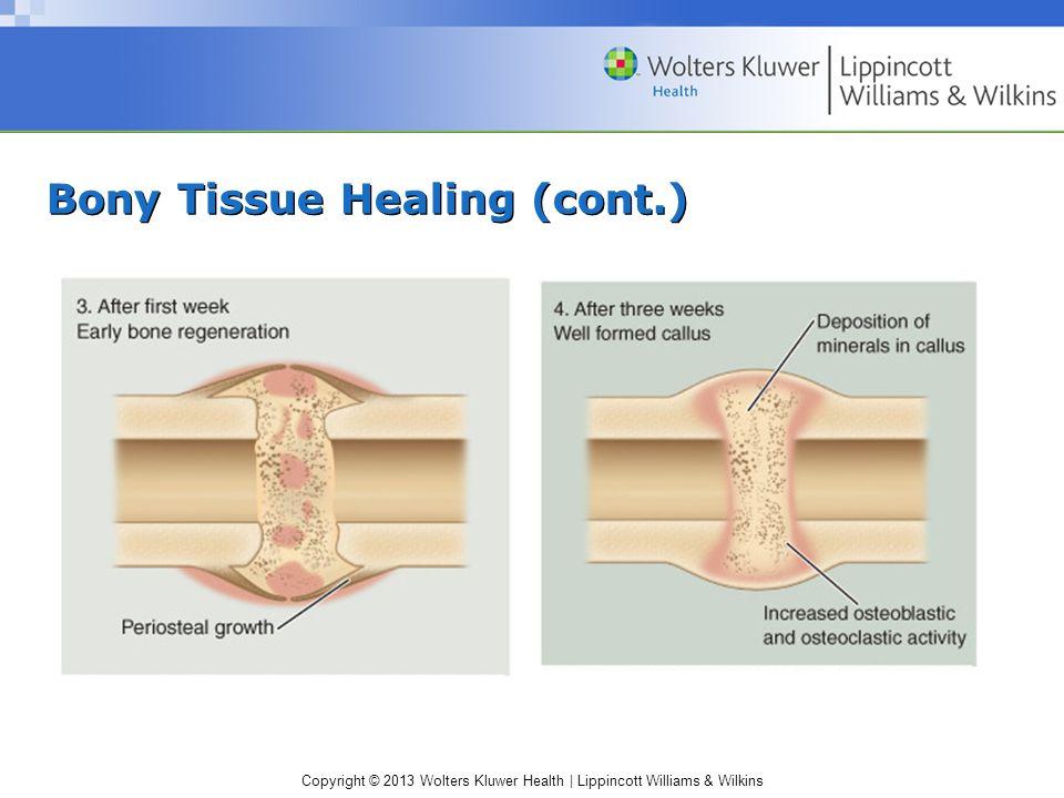 Bony Tissue Healing (cont.)