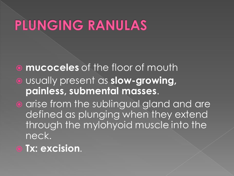 PLUNGING RANULAS mucoceles of the floor of mouth