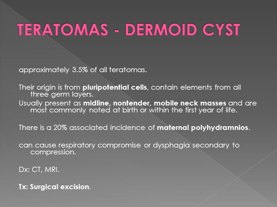 TERATOMAS - DERMOID CYST
