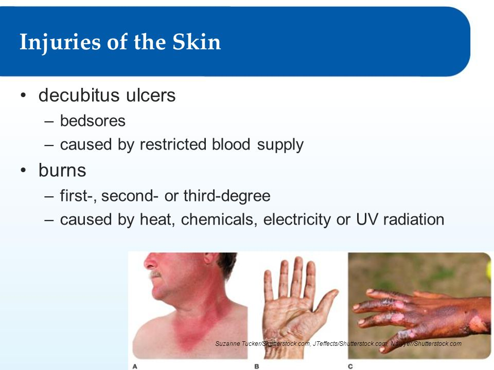 Injuries of the Skin decubitus ulcers burns bedsores