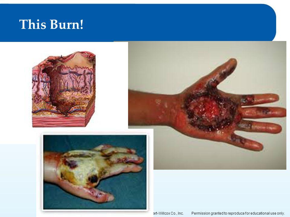 This Burn!