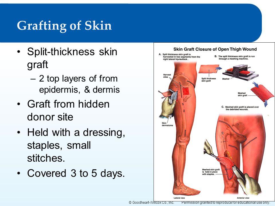 Grafting of Skin Split-thickness skin graft