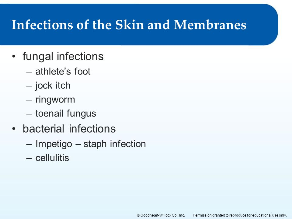 Infections of the Skin and Membranes