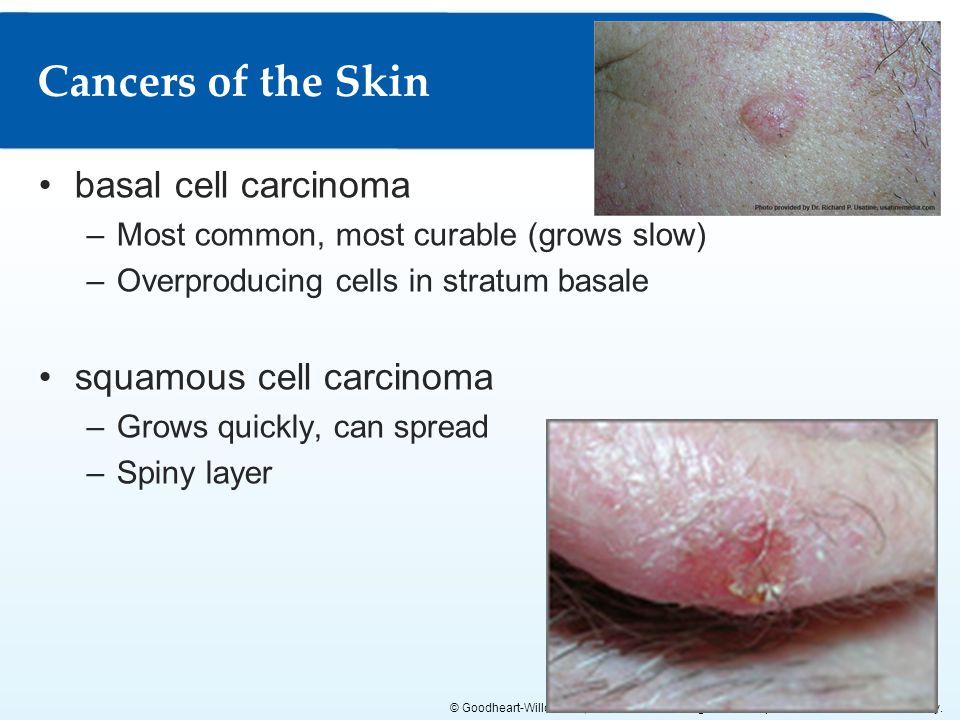 Cancers of the Skin basal cell carcinoma squamous cell carcinoma